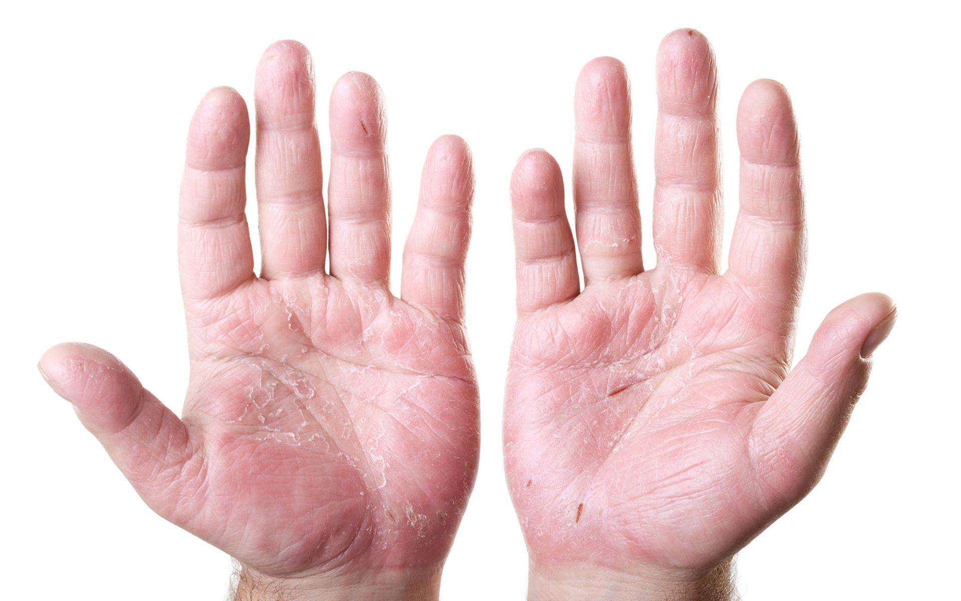 atopic-dermatiti
