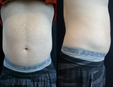 After-Emsculpt Neo- Before and After4 Treatments
