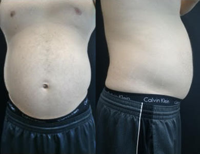 Before-Emsculpt Neo- Before and After4 Treatments
