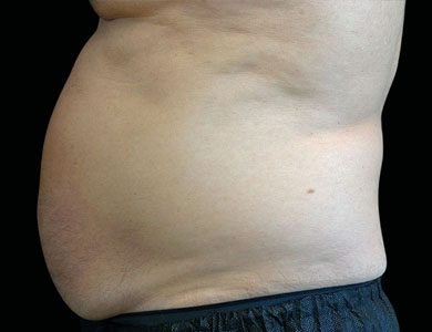 Before-Emsculpt Before and After