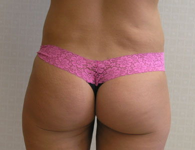 After-Liposuction Before & After