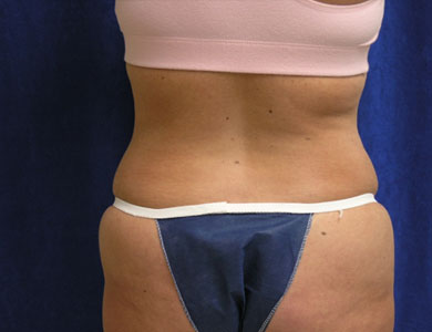 Before-Liposuction Before & After